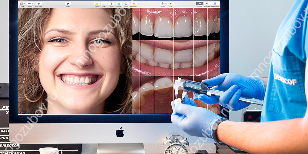 технология dental smile design